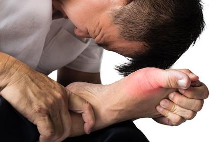 痛風になってしまった!筋トレを続けるにはどうすれば良い?