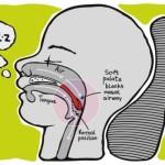 痛風・肥満にも影響を与えるいびきや睡眠時無呼吸症候群。これらの改善効果を期待できるナステントを使ってみた!筋トレする人も要注目!!
